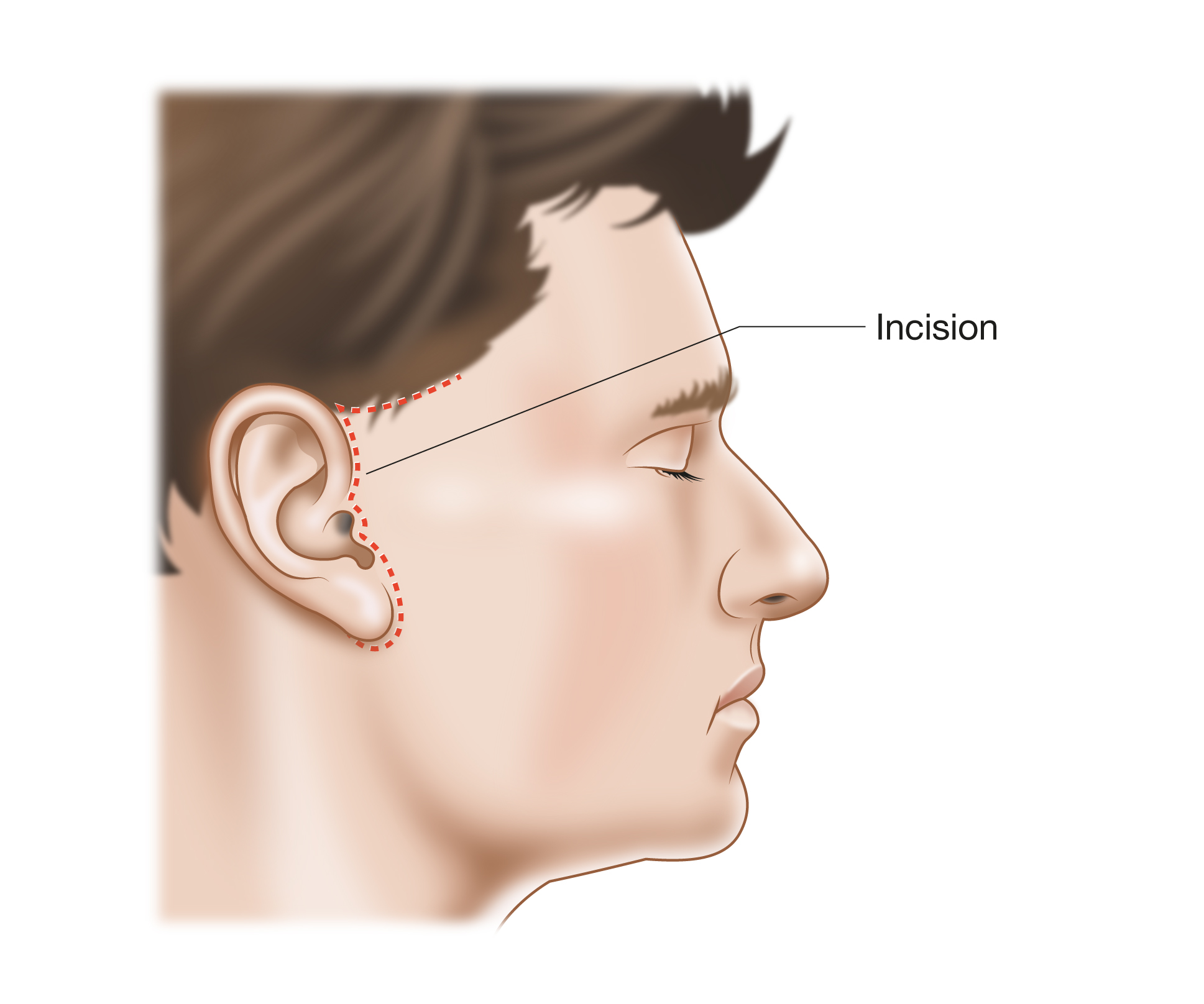 Southern maryland maxilla facial surgery